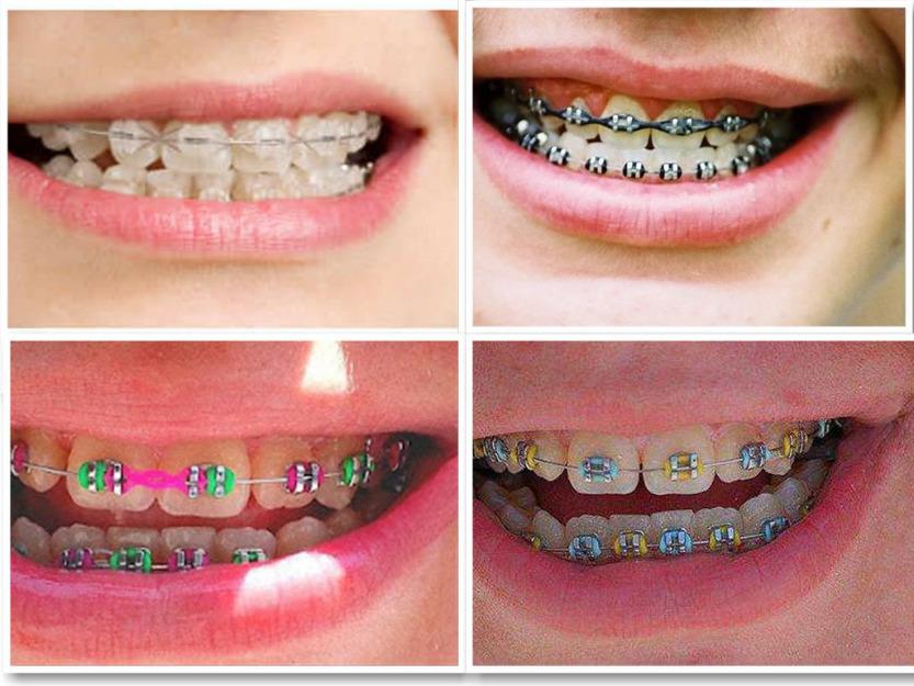 Macam -macam kawat gigi (behel)