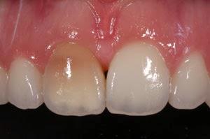 diente teñido oscuro