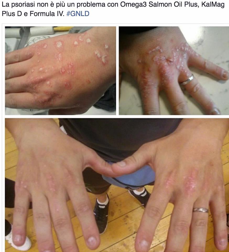 Eczema dellestremità più bassa di una gamba