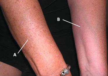 La pigmentación sobre la persona la desaparición por el láser