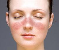 obat lupus alami