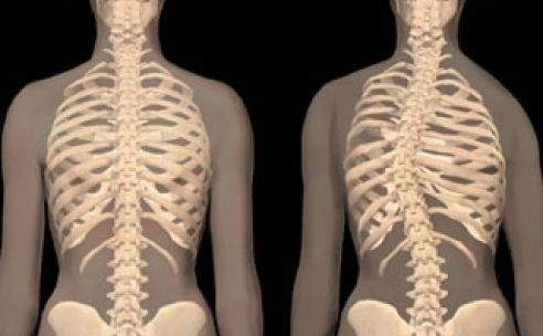 scoliosis definition : what is scoliosis ? | health and beauty, Human Body
