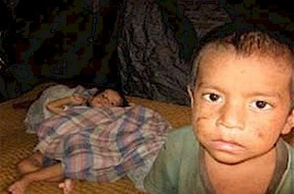 Pobreza infantil afeta quase 81 milhões de crianças na América Latina e no Caribe