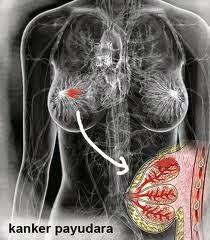 8 Tips Untuk Mencegah Penyakit Kanker Payudarah