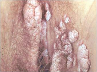 penyakit-kelamin-seks-bebas-virus-human-papilloma-vph-condylomes
