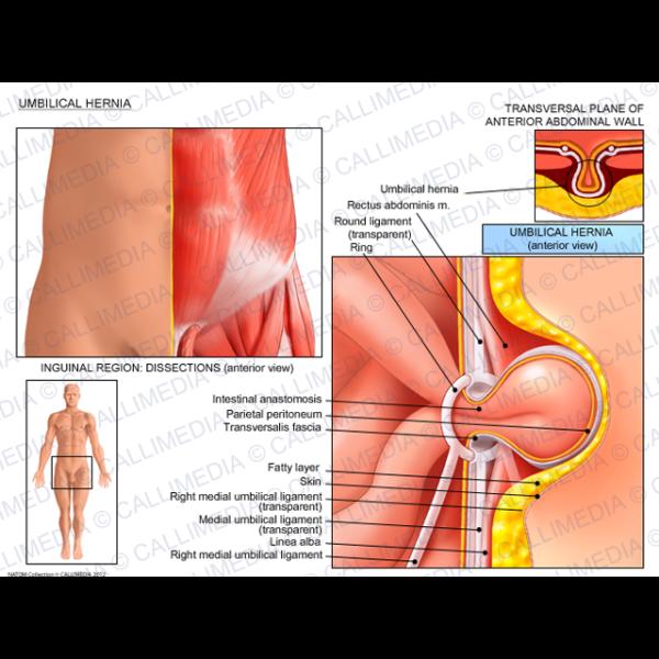 Enchanting Umbilical Hernia Repair Anatomy Adornment - Anatomy And ...