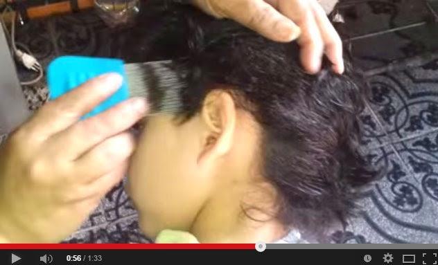 VIDEO Serangan Kutu Paling Dahsyat Di Kepala Seorang Budak