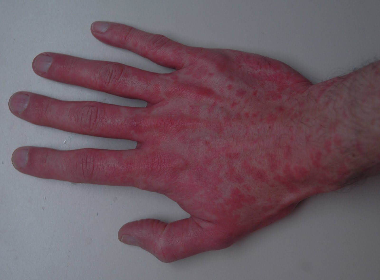 What causes reddened hands? | Reference.com