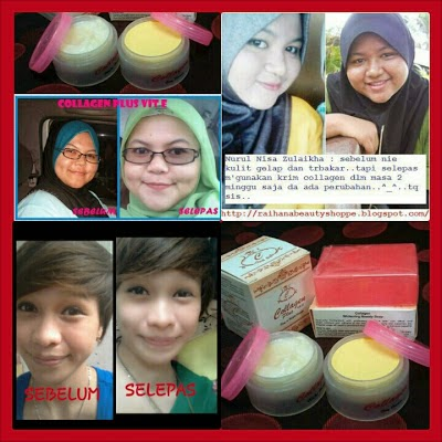 SET COLLAGEN PLUS VITAMIN E MURAH ORIGINAL