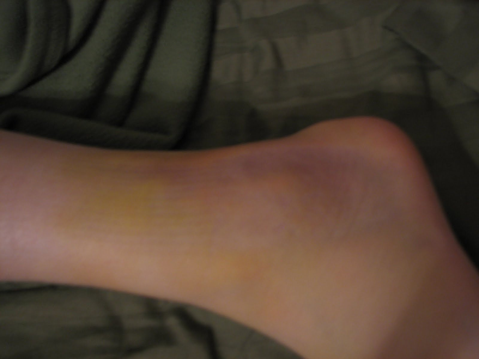 The bruise got nice and yellow and it swelled up for a couple of days