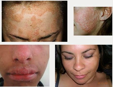Image Obat penyakit sipilis alami |obat sipilis herbal