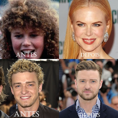 Cabello Crecer,Cabello Crespo,El pelo rizado,crecimiento del cabello,caída de cabello,caída capilar,tratamiento de la pérdida de cabello