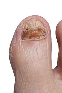 Big Toe With Toenail Fungus Infection