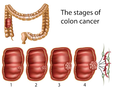 Colon Cancer Treatment: Colorectal Cancer Stages and ...