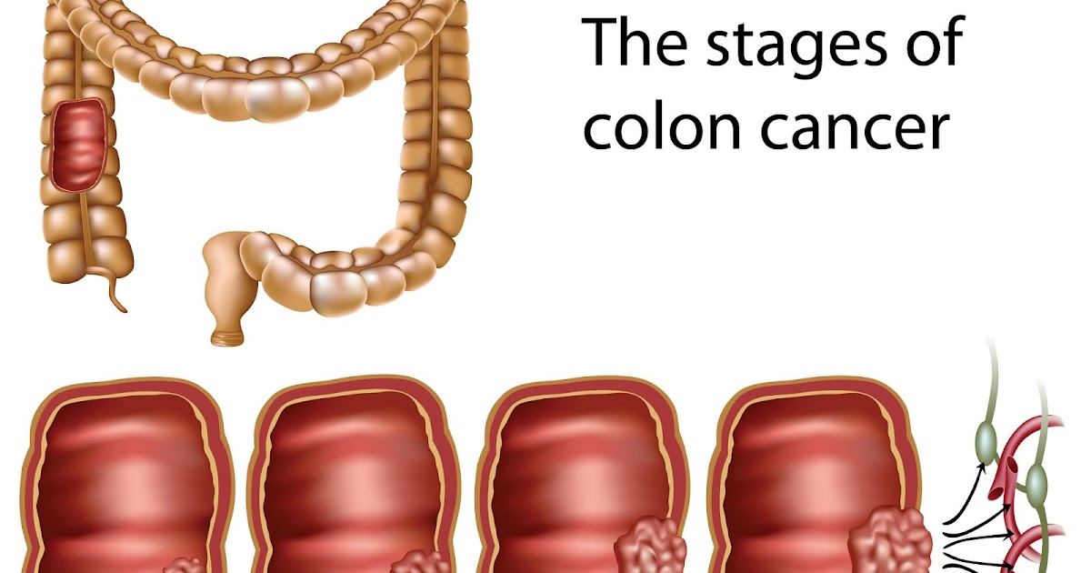 Image Result For Stage  Colon Cancer Treatment Options