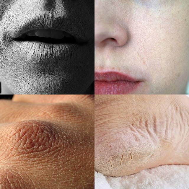 أفضل الماسكات للتخلص من جفاف الجلد نهائياً وبسهووولة !