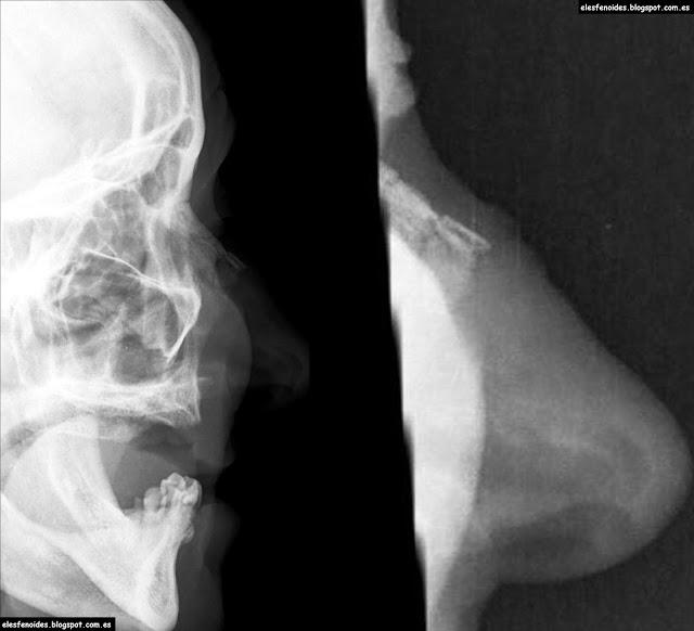 El esfenoides: Fractura de huesos nasales. 2 imágenes 1 caso.