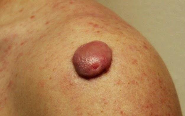 Keloid di kulit