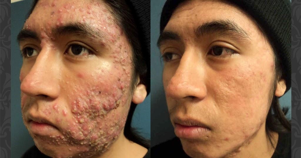 Hola doctor daniel que es el acn y como curarlo - Cabeceras pintadas en la pared ...