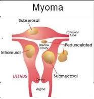 cara mengenali penyakit miom