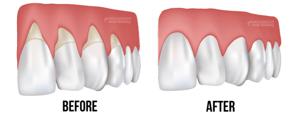 To get back your gums, follow following treatment