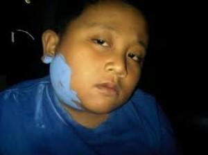 Pengobatan Aneh Di Indonesia Tapi Tetap Dilakuin