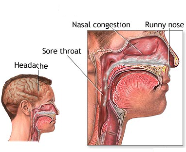 Home Remedies For Severe Cold And Running Nose