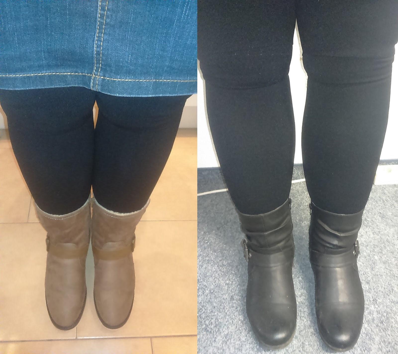 Mein Lipödem und ich: Wieder dicke Beine