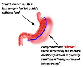 sleeve gastrectomy cost India
