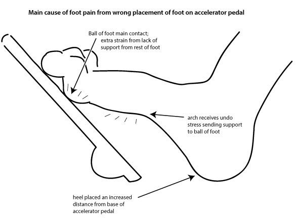 Tim Fink Blog  Fink Scientific Tm   Pedal Pain Explained