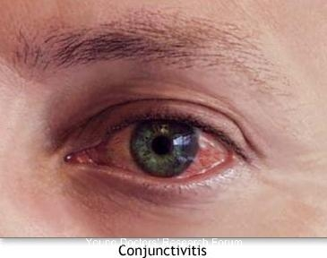 Images For Conjunctivitis Young Doctors Research Forum