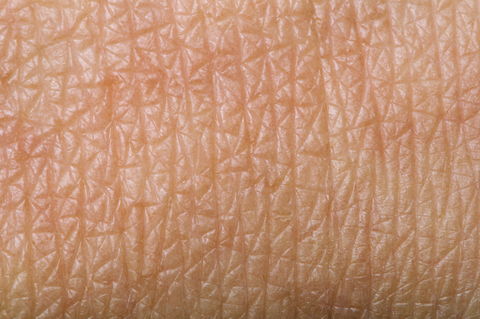 skin wrinkles from eating too much sugar