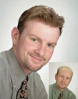 Solución para la caída del cabello en hombres