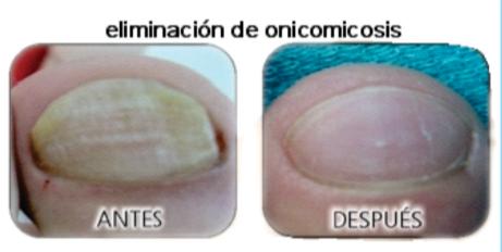Onihomikoz hipertrófico las uñas el tratamiento los preparados
