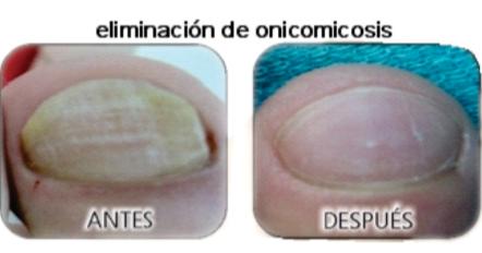 Que beber las pastillas del hongo sobre las uñas