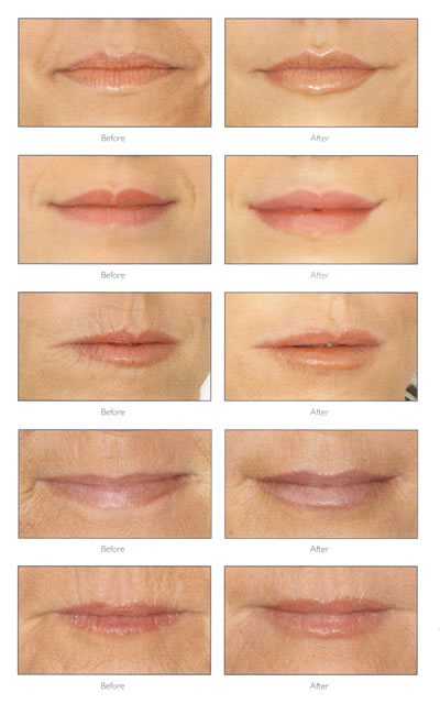 Different Types Of Lips There are many types of dermal