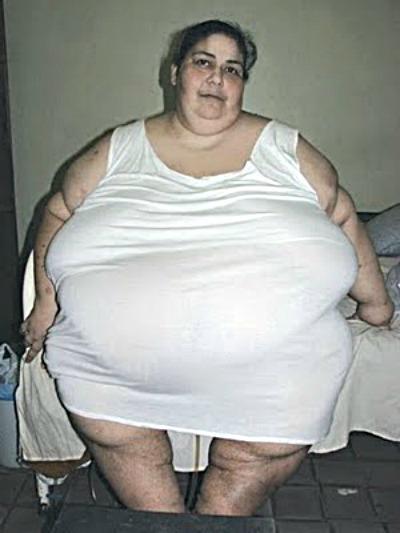 Obesidade Morbida