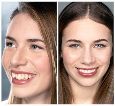 smile-sydney-a-smile-makeover