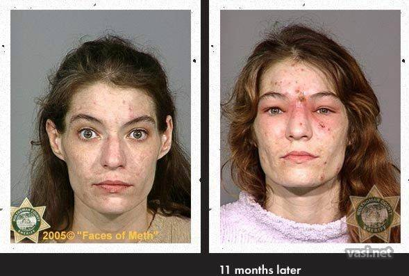wajah ke 3 Wajah Para Pemakai Narkoba Sebelum Dan Sesudah Kecanduan