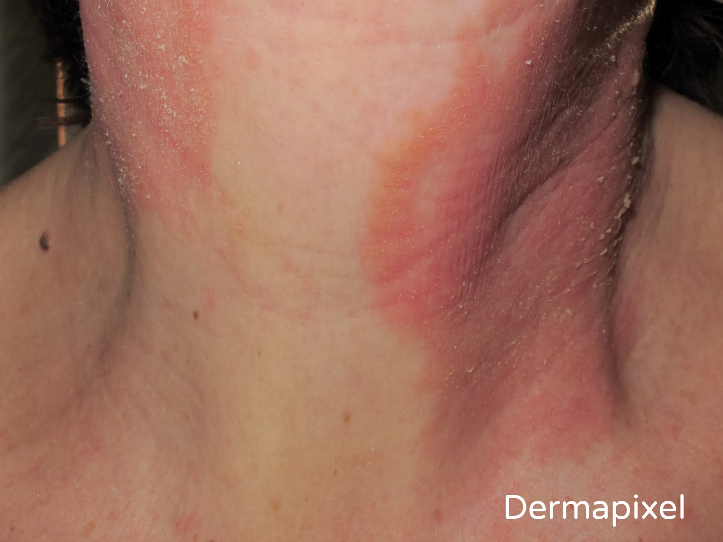 El acné o las inflamaciones de las glándulas sebáceas
