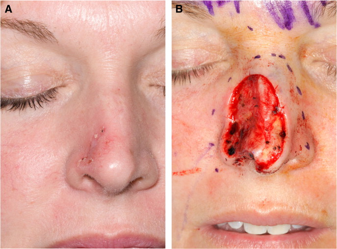 Sår i ena näsborren