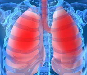 http://3.bp.blogspot.com/-SM1VJRrGmQ0/UDtGTzI7xwI/AAAAAAAAHIE/zwaxa8tdM_c/s1600/Healthy+Lungs.jpg