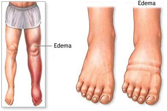 Hasil gambar untuk edema tungkai kaki
