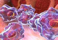 Câncer ósseo : causas, sintomas, Diagnóstico, Tratamento e Prognóstico