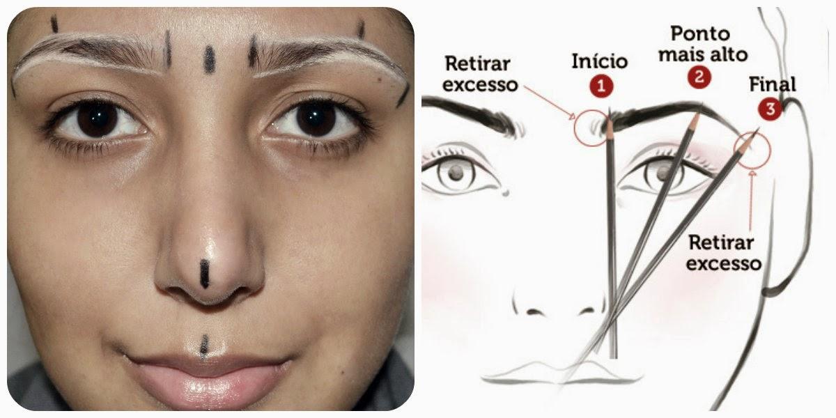 O procedimento que retira lugares de pigmentary