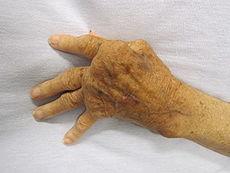 Image showing a severy affected hand by RA