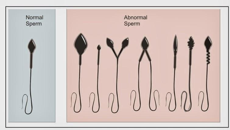 sperma tak berkualiti