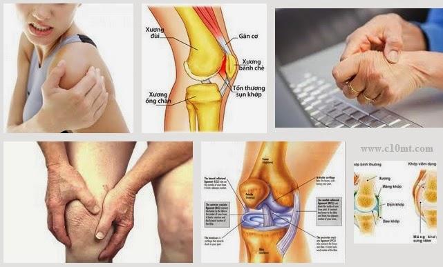 Bệnh đau xương khớp Thảo Cốt Vương