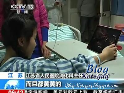 Ketulan rambut ditemui di dalam perut seorang gadis China