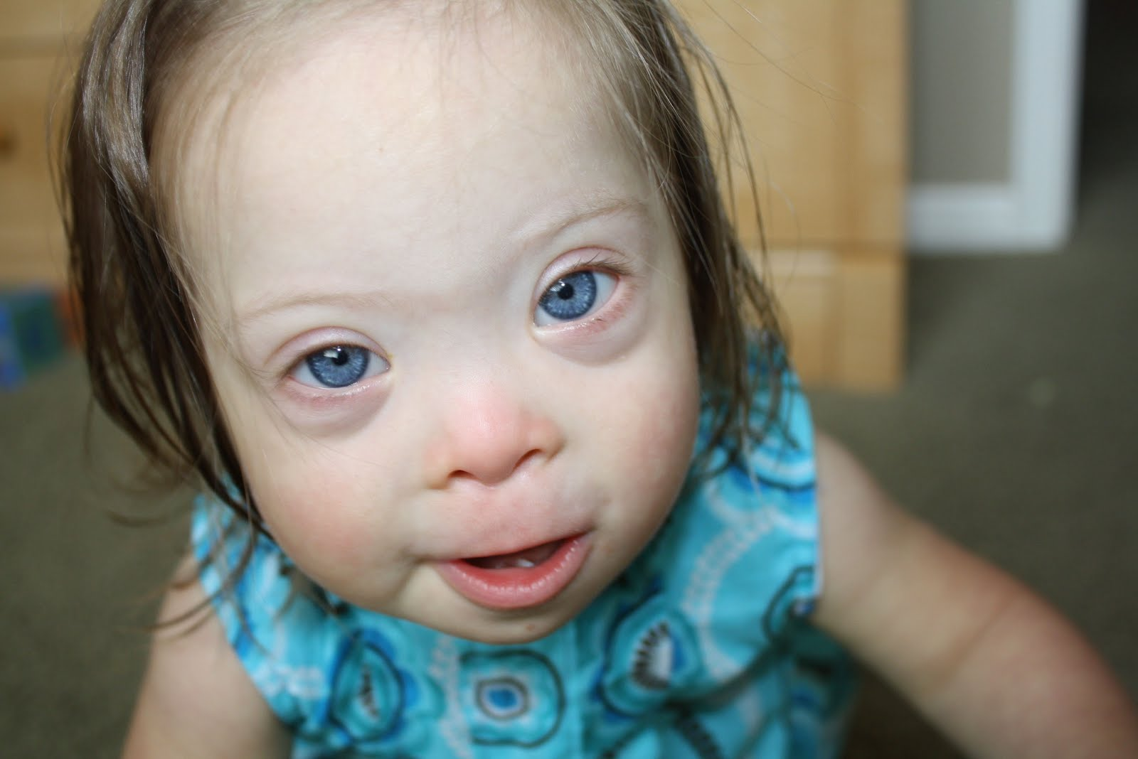 Jaxsons fight what questions should you ask for Fishing eye syndrome